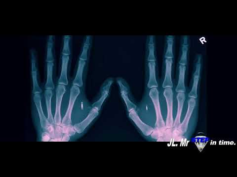The man that designed the (RFID CHIP) explains - The Mark of the Beast  666