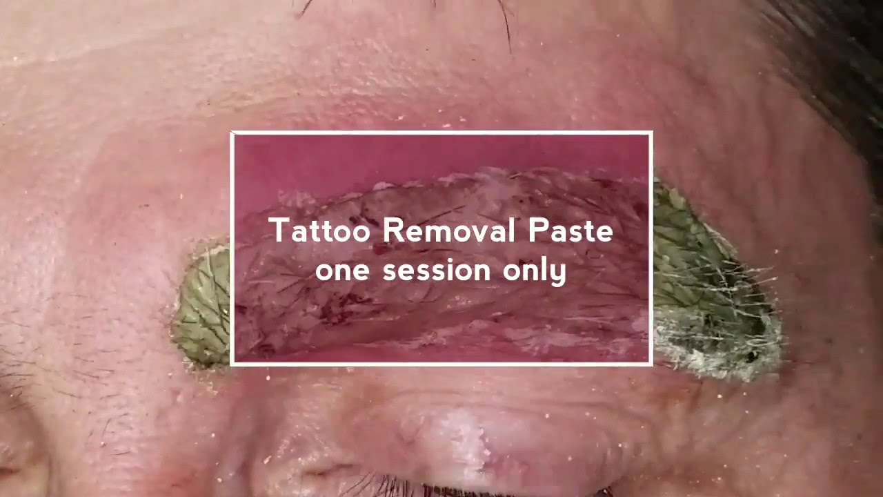 Tattoo Removal Eyebrows - YouTube