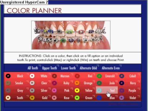 braces color chooser - photo #2