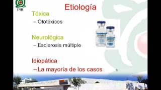 Hipoacusia súbita