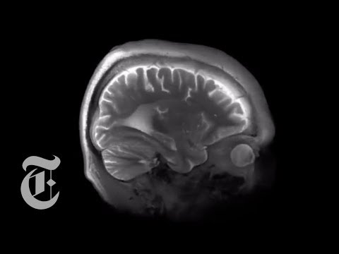 Mapping the Brain Down to .0001 Cubic Inches | The New York Times