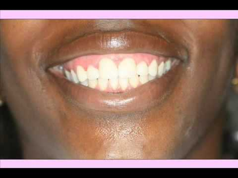 how to get rid of white gums