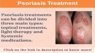 See now inverse psoriasis treatment options
