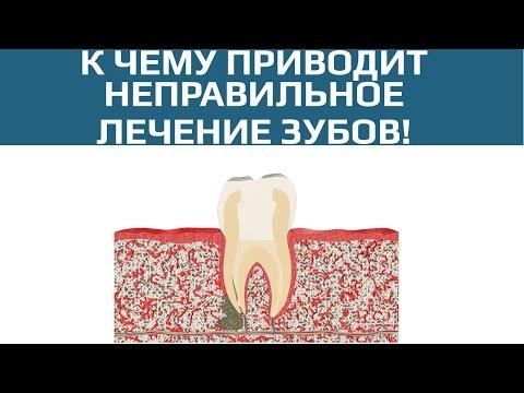 После наложения лекарства болит зуб