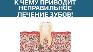 Осложнения после лечения пульпита. Плохо запломбированный канал зуба(, 2017-04-14T14:39:36.000Z)