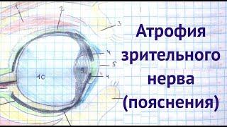 Атрофия зрительного нерва, пояснения
