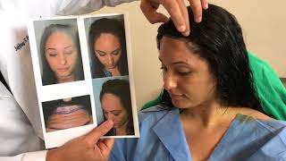 Video Immediately After a Hairline Lowering/Forehead Shortening Surgery download MP3, 3GP, MP4, WEBM, AVI, FLV September 2018