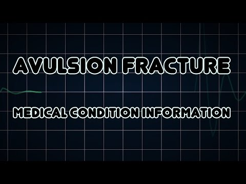 Avulsion fracture (Medical Condition)