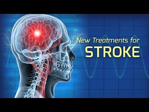 how to stop a stroke at home