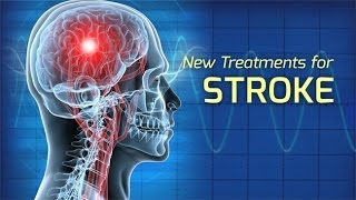 Innovations in the Treatment of Stroke - Health Matters
