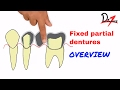 Fixed partial dentures : Overview (HINDI)