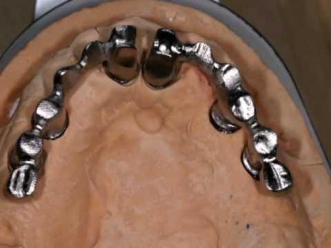 Full mouth cosmetic dentistry rehabilitation on Ankylos dental implants