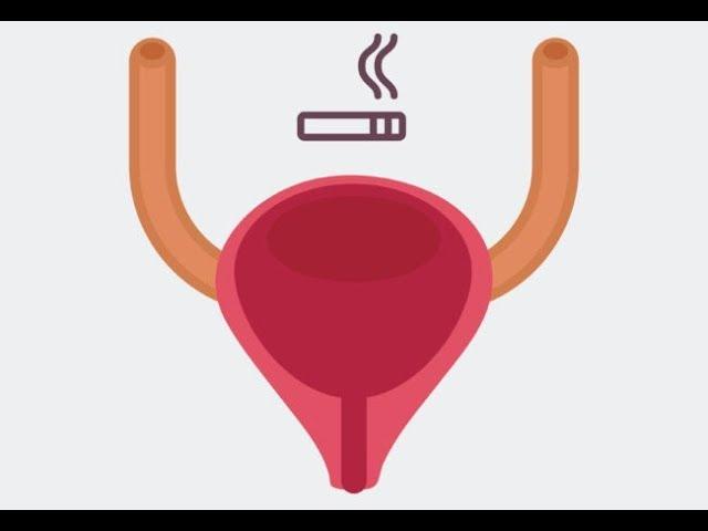 Επιπτώσεις του καπνίσματος στο ουροποιητικό σύστημα