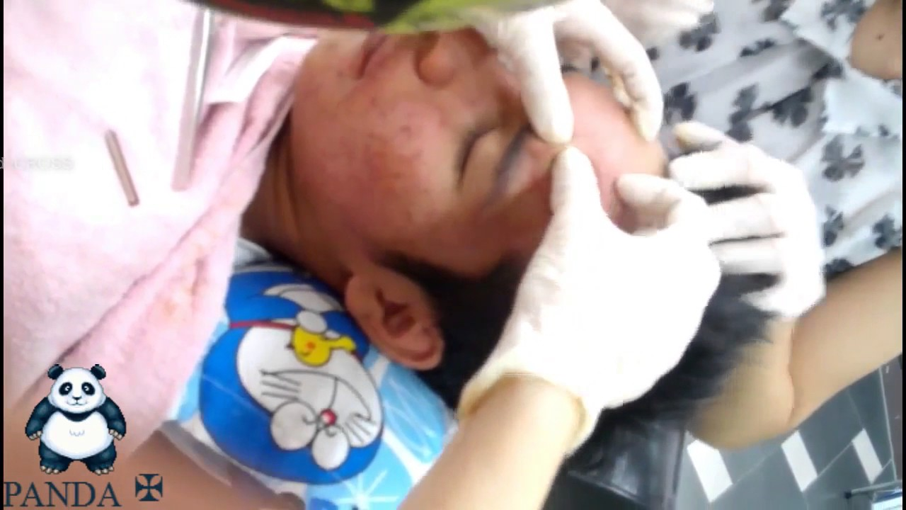 Extraction Of Blind Pimples And Acne On Face!! - YouTube