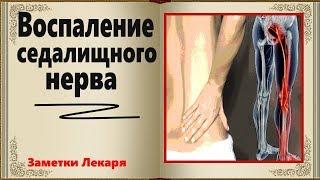 Воспаление седалищного нерва . ИШИАС . Успешное лечение в домашних условиях