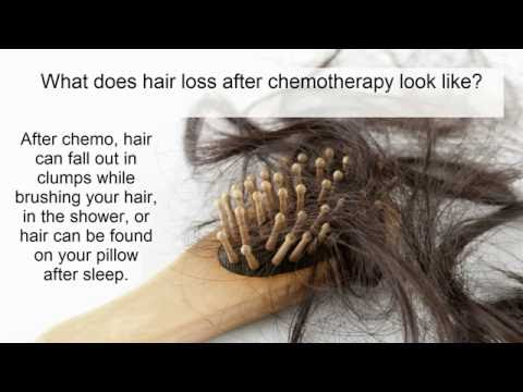 Hair loss from chemotherapy: what is it? who gets it? how do we treat it?