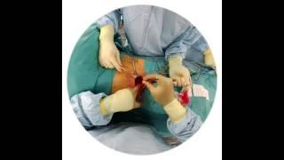لأول مرة في عالم الطب.. جرّاح يرتدي نظارة «سناب شات» لتصوير عملية جراحية