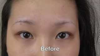 Eyebrow Transplant Amazing Results