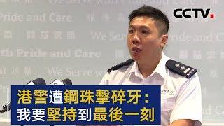 香港警察遭暴徒钢珠弹击碎牙齿:我要坚持到最后一刻 | CCTV