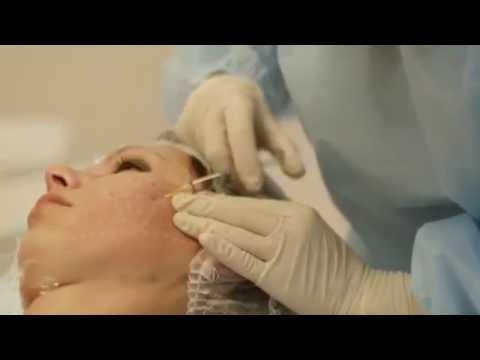 Редермализация кожи Hyalual (Гиалуаль). Демонстрация процедуры.