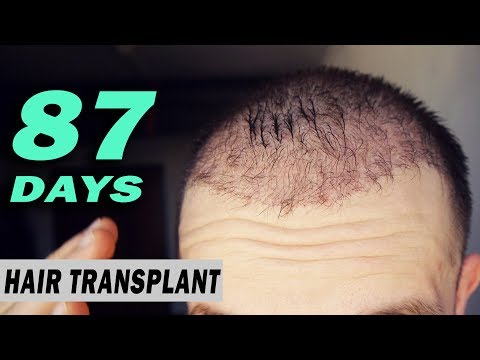 FUE Hair Transplant DAY 87 (post op) Istanbul, Turkey GROWTH STAGE