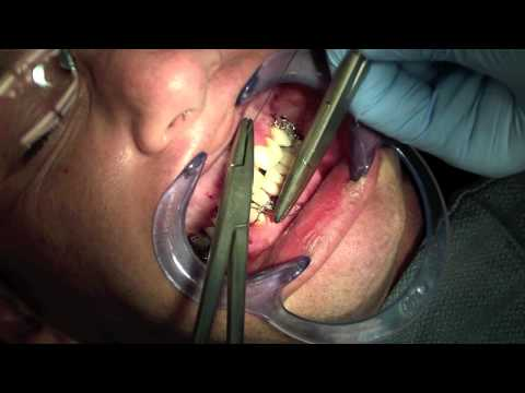 Jaw Fracture - Fixating Mandible and Maxilla