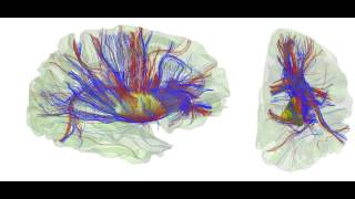 White matter fiber tracts registration