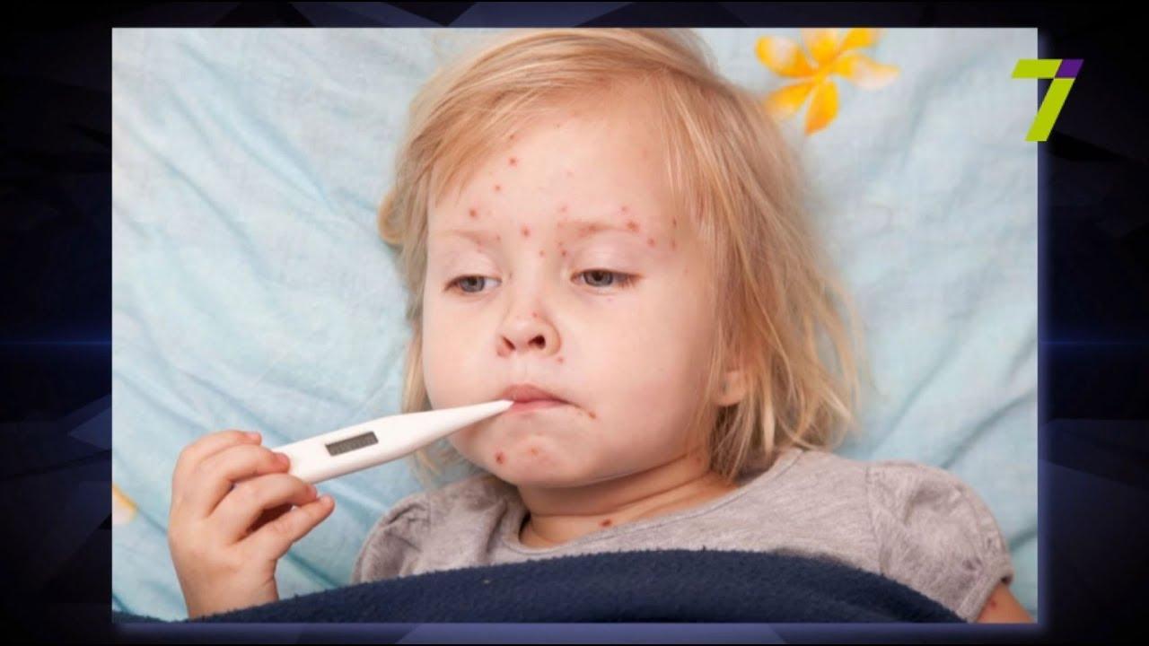 школа комаровского аллергия