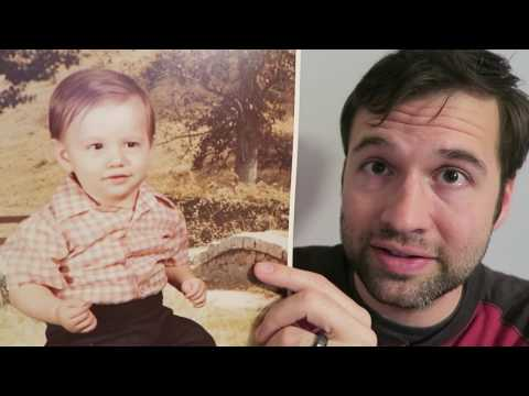 Am I Balding? Try This Out: 1 Year-Old Photo Test