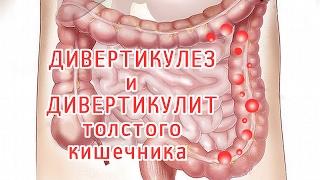 Дивертикулит и дивертикулез толстой кишки. Обзор болезней в видео от врача и разница между ними