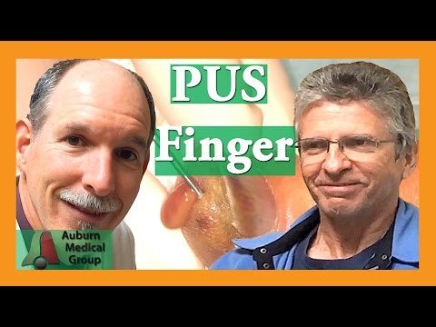 Finger Infection PUS popping   Auburn Medical Group