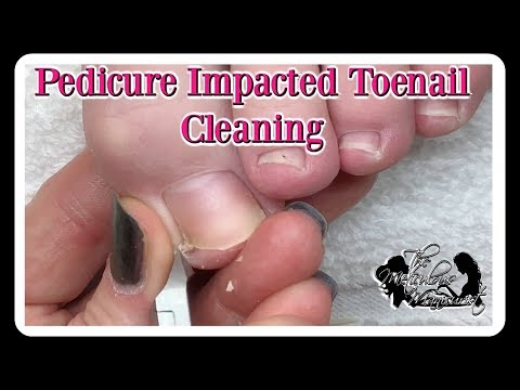 👣Pedicure How to Clean Impacted Toenails  👣⭐