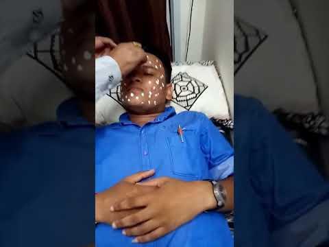 Acne Scar Treatment @ Dr Singh's Clinic Nashik(4)
