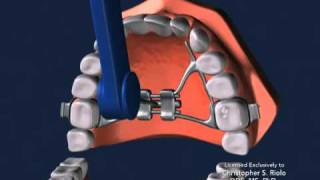 Seattle Orthodontist Dr. Christopher Riolo: Banded Expander, RPE