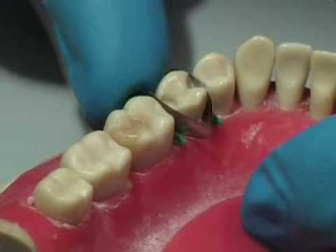 реставрации зубов вкладками винирами