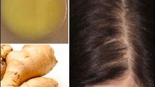 С помощью имбиря волосы растут быстрее и не выпадают Супер быстрый рост волос