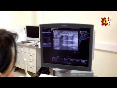 Перелом плеча. Быстрое лечение и реабилитация.