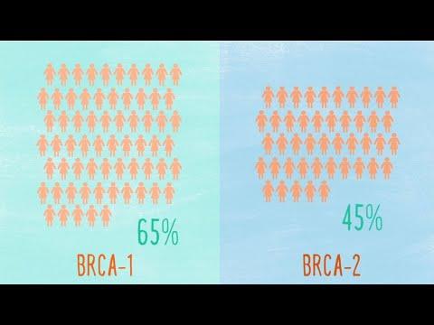 Poliklinika Harni - Rak dojke kod nositeljica mutacije BRCA gena