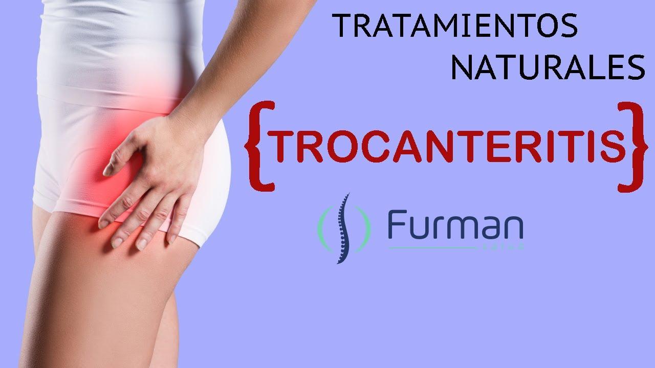 Trocanteritis (Bursitis Trocanterea)