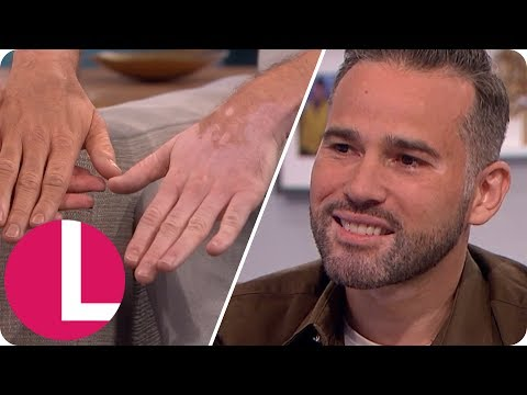 Dean Edwards Reveals His Vitiligo to Lorraine | Lorraine