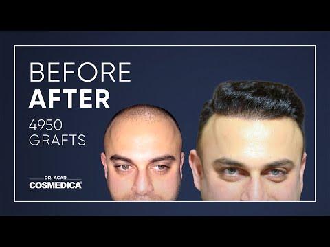 COSMEDICA DR.ACAR ,4950 Grafts  FUE Hair Transplant,Turkey-Istanbul