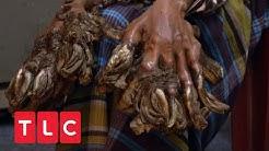 Ein Baummann aus Bangladesh hofft auf Heilung seiner Krankheit | Body Bizarre | TLC Deutschland