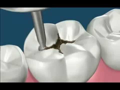 Quitar caries y reconstruir diente