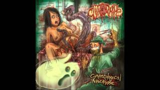 CLITORAPE -  Double Anal Penetration Ultimo Mondo Cannibal Cover