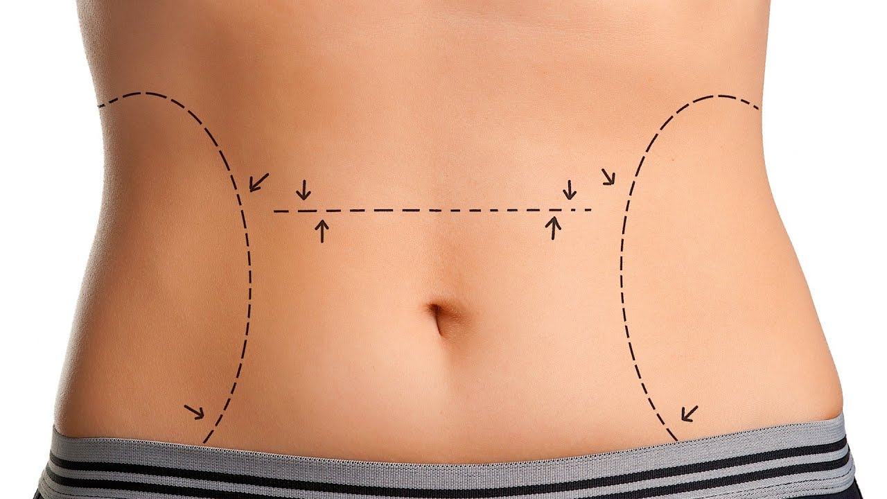 Does a Tummy Tuck Leave a Big Scar? | Plastic Surgery