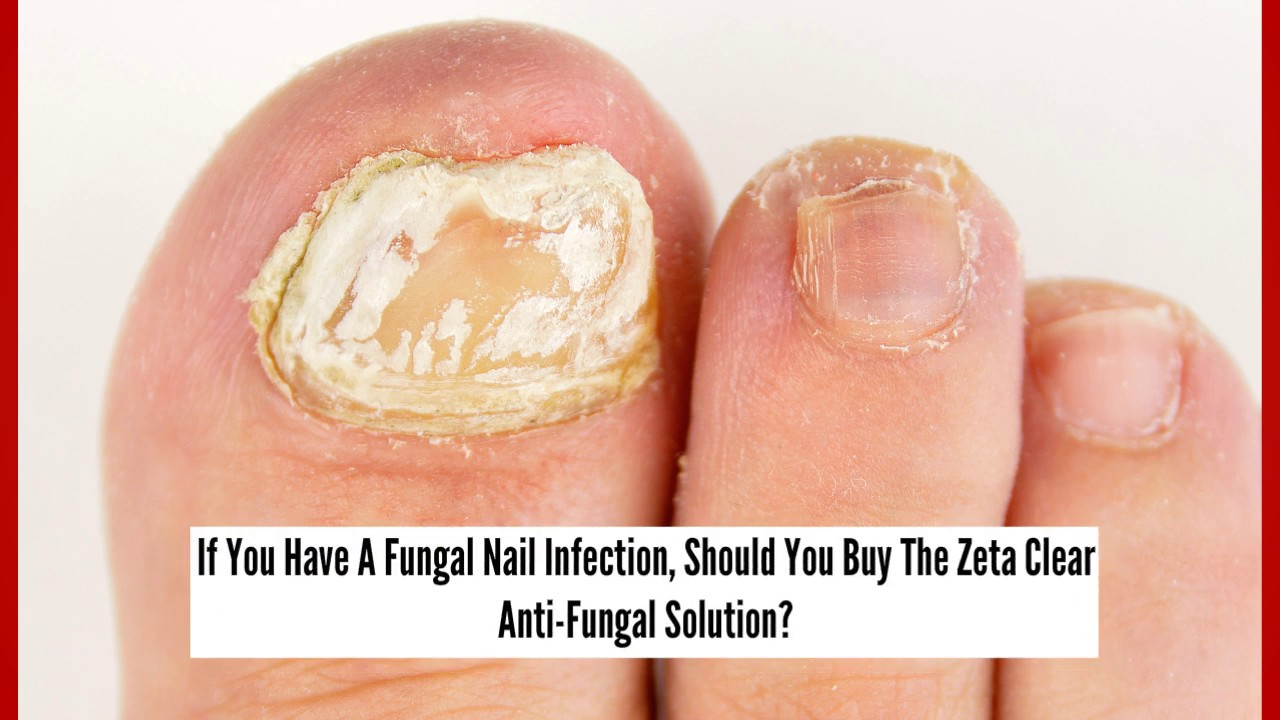 Nail Fungus Home Remedy The Anti Fungal Solution From Zeta Clear