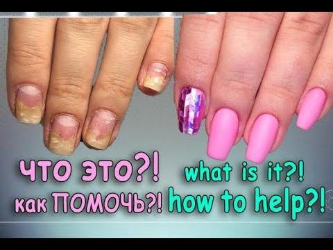Отслоились ногти от гель лака!Наращивание на проблемных ногтях.Как наращивать ногти гелем