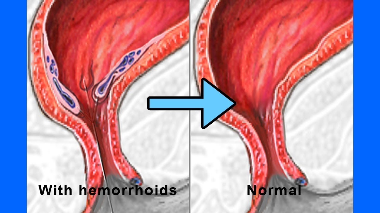 Thrombosed Hemorrhoids