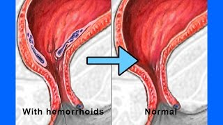 How To Get Rid Of Hemorrhoids in just 2 days - How To Shrink Hemorrhoids Fast and Naturally?