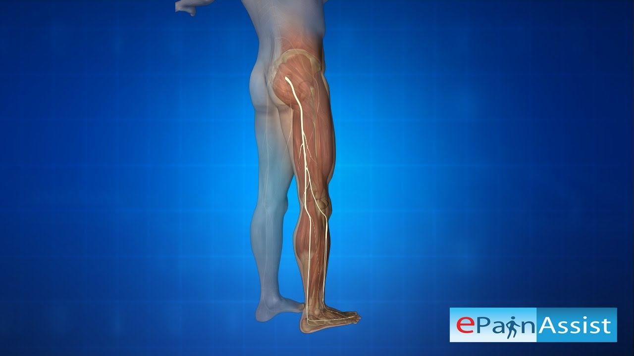 18 Articles Hamstring Problems and Other Injuries - Pinoyathletics info